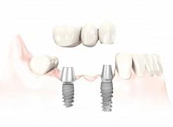 Advantages of Implants